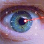 laser øjenoperation